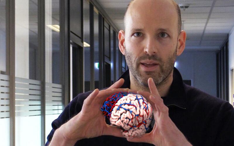 Frontbilde video hodneland hjerne