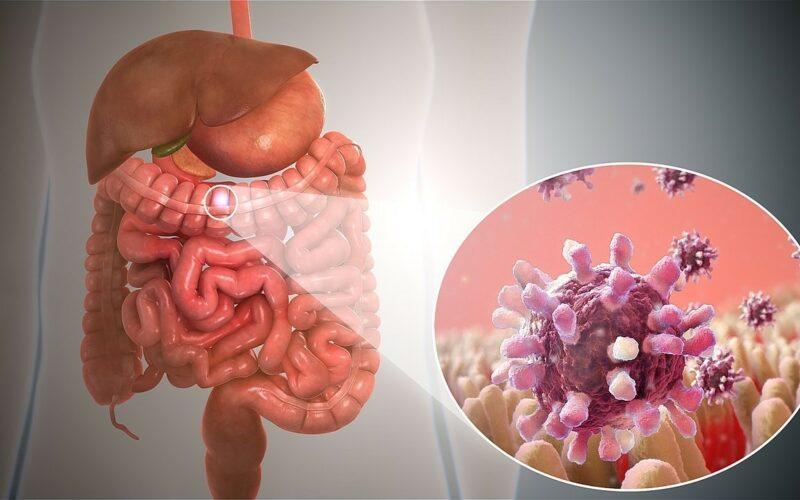 Gastroenteritt